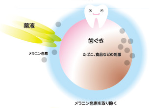 ガムピーリング(歯ぐきの美白)・ステインクリーナー